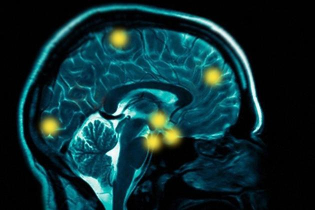 Brain Injury and MMA: A Word to the Wise