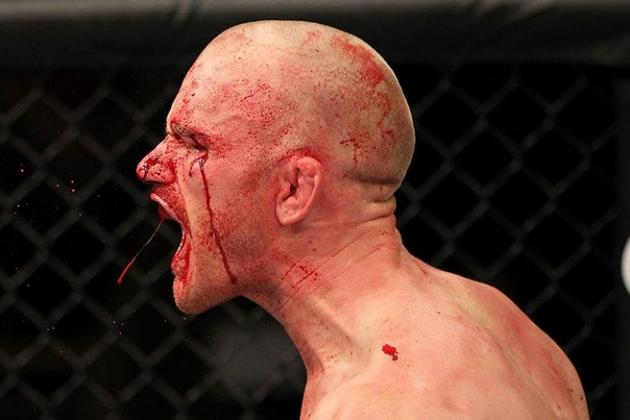 TUF 15 Finale Results: Martin Kampmann Tweets Pic of Bloody Face After Fight
