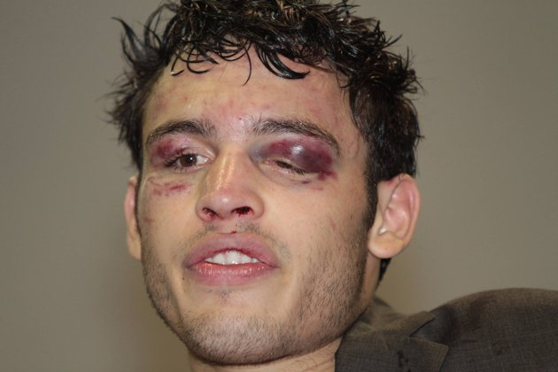 Julio Cesar Chavez Jr.: Did Drug Use Cause Uninspired Sergio Martinez Loss?