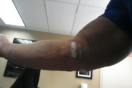 WWE News: John Cena Tweets Updated Post-Surgery Photo