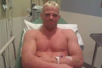 Dennis Hallman Misses Weight by a Mile, Fight with Thiago Tavares Canceled