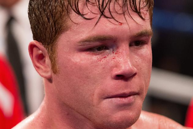 Boxing: Breaking Down Biggest Issues Canelo Alvarez Poses for Floyd Mayweather