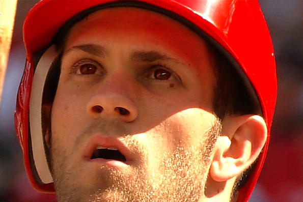 Photo: Bryce Harper's Eyes Are Red