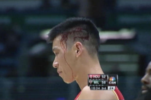 Jeremy Lin Injury: Updates on Rockets PG's Head