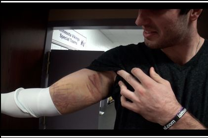 Here's a Picture of Christian Ponder's Messed-Up Arm