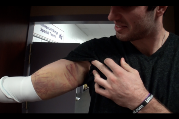 Here's Why Christian Ponder Didn't Play