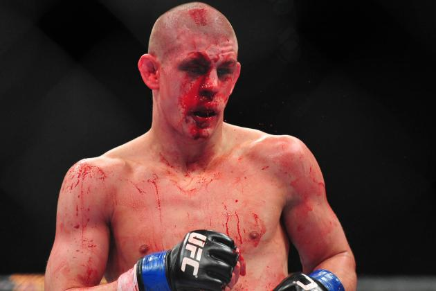 UFC News: Joe Lauzon Posts Photo Collage of Face Healing After Jim Miller Fight