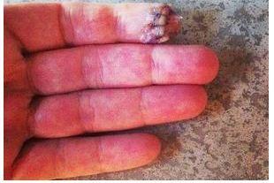 Annika Sorenstam Accidentally Cut off the Tip of Her Finger