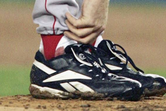 Curt Schilling's Bloody Sock Goes Up for Auction