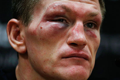 Ricky Hatton: Pacquiao Should Retire 100%