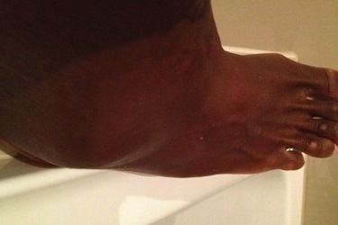 Serena Williams Tweets Picture of Injured Ankle