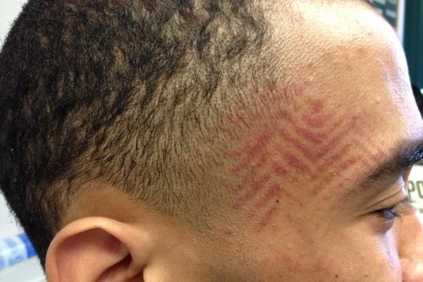 Cal Poly Basketball: Player Gets Face Foot Imprint (PHOTO)