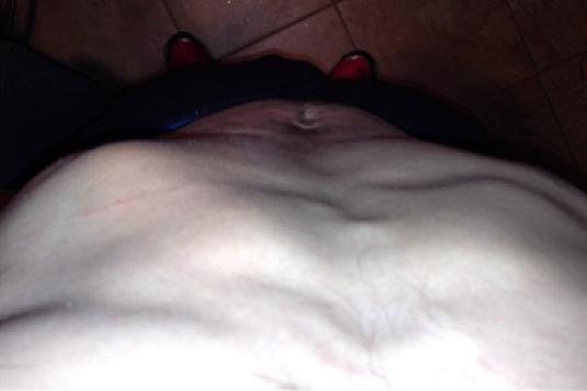 Garica Posts Instagram Photo of Rib Injury