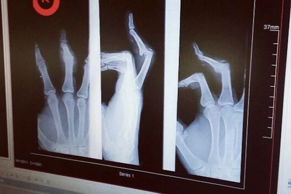 Thomas DeCoud Broken Finger X-Ray