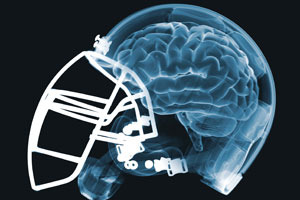 Report: NFL Partners with GE for Concussion Research