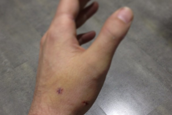 Cast Off, Casillas Instagrams Bruised Hand
