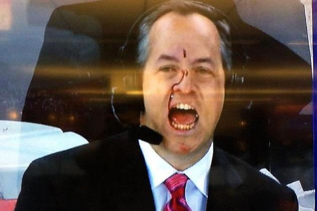Rangers' Reporter John Giannone Smashed in Face by Puck