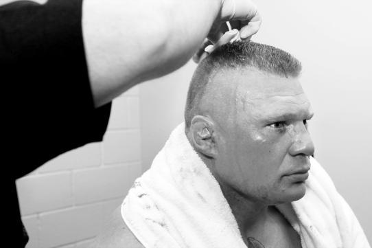 WWE Needs to Capitalize on the Brock Lesnar Accident