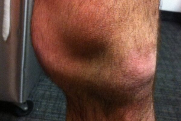 Ryan O'Byrne Tweets Gruesome Photo of Swollen Knee