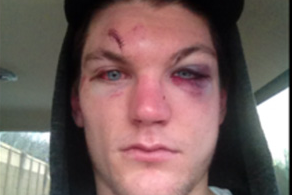 Photo: Tye McGinn's Broken Face After Fight