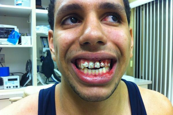 St. Mary's Brad Waldow Has Surgery to Repair Tooth