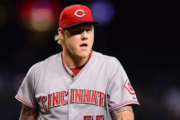 X-Rays Negative on Latos' Ankle