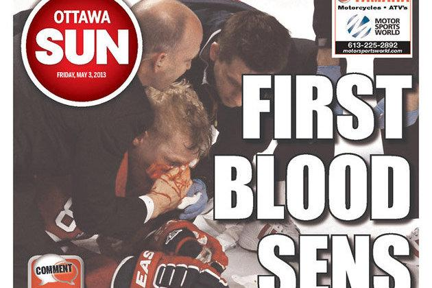 Ottawa Sun Called out for Bloody Lars Eller Cover