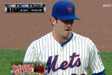 Matt Harvey Pitched with a Bloody Nose