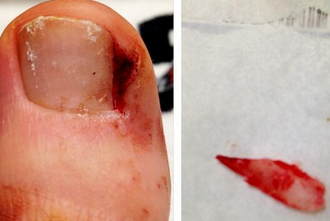 Bryce Harper's Picture of Gross Toenail Is Gross