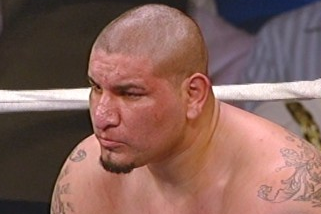 Arreola Had Surgery to Fix Badly Broken Nose