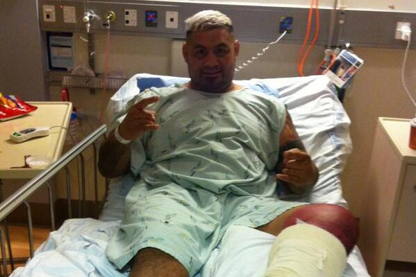 Mark Hunt Reveals Graphic Video of Staph Infection That Landed Him in Surgery