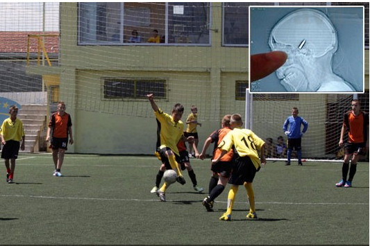 Bosnian Goalkeeper Discovers In-Game Headache Was from Bullet in His Head