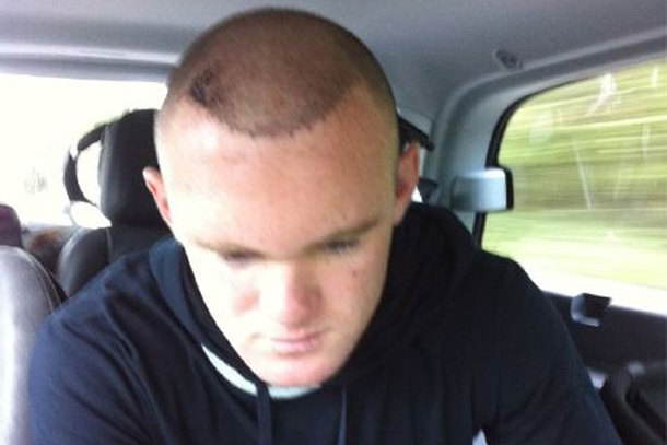 How Wayne Rooney's Hair Transplant Changed Football History