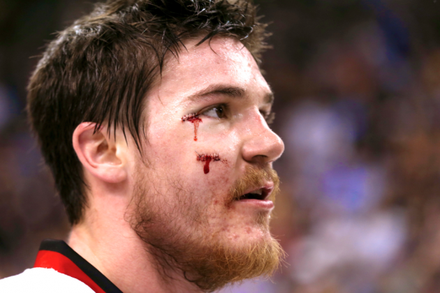 Blackhawks' Andrew Shaw Auctioning Stitches for Charity in Awesome Hockey Move