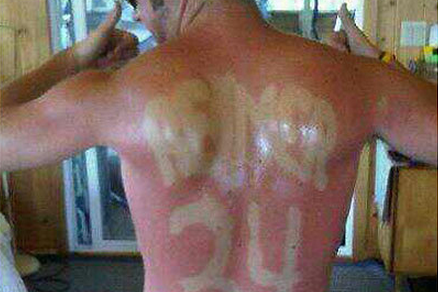 NHL Fan Uses Sunburn to Make His Body into a Jersey
