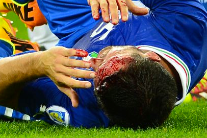 Italy Defender Manuel Pasqual Suffers Horror Cut