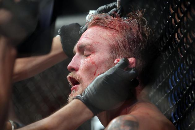 Alexander Gustafsson Receives Multiple Staples in His Head but No Major Injuries
