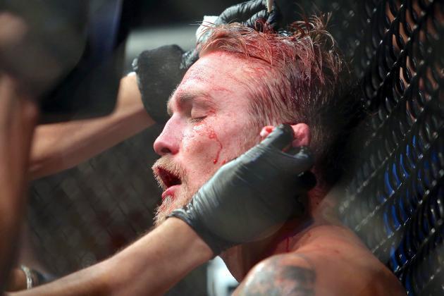 UFC 165 Medical Suspensions: Jon Jones, Alexander Gustafsson out 60 Days
