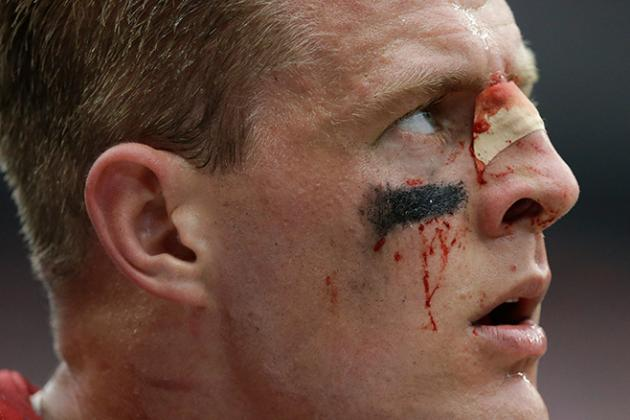 J.J. Watt Plays Through Bloody Injury