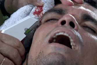 GIF: Real Madrid's Pepe Gets His Head Stapled During Champions League Match