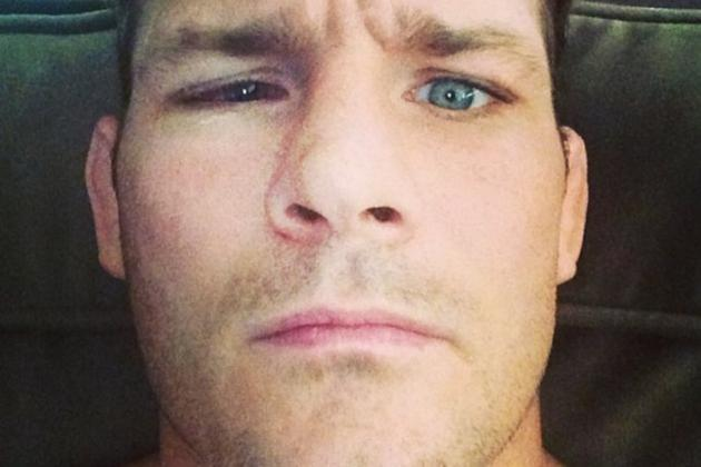 Bisping Posts Photo of Eye Recovery Following Detached Retina