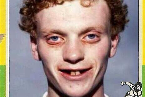Photo: David Moyes the Player Looks Like Spawn of Satan