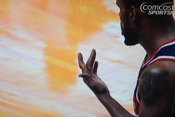 Finger of Washington Wizards Forward Trevor Booker Is All Kinds of Jammed