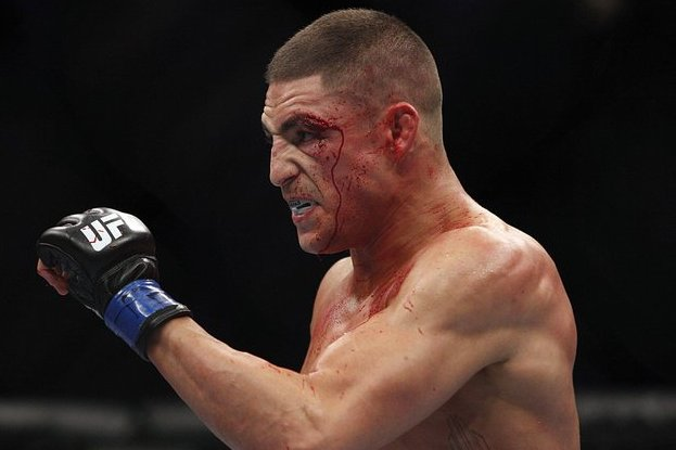 Conor McGregor: Diego Sanchez Is a Brain Dead, Stuttering Fool