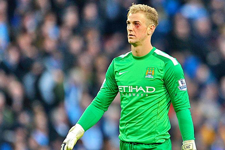 Joe Hart Suffers Brutal Cut to Eye During Man City Match, Continues Playing
