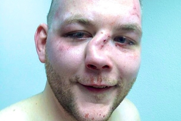 The Dangers of MMA
