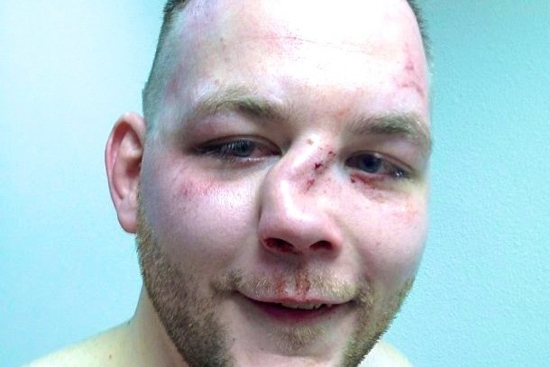 MMA Fighter Andy Eichholz Suffers Nasty Broken Nose