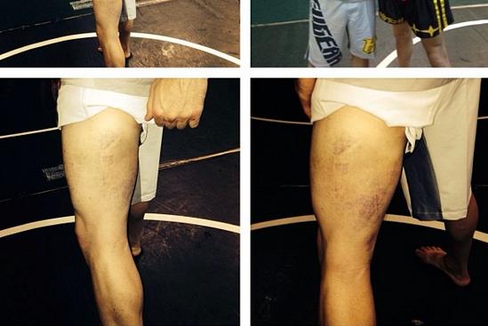 Ricardo Lamas Shows off Left Leg After UFC 169 Battle with Jose Aldo