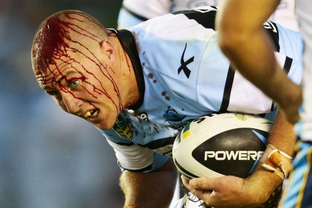 Bryce Gibbs Suffers Nasty, Bloodied Head After Cut in NRL Season Opener