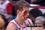 Dunleavy Leaves Court Bloody, Returns to Drop 18 in 3rd Quarter